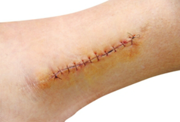 I Need Stitches Wound Surgical Suture Wound Healing Surgery Injury image #47531