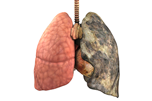 Lung Png image #25417